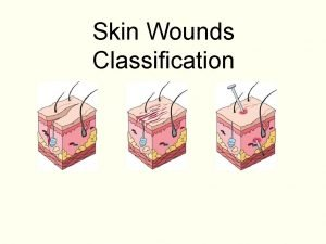 Skin Wounds Classification Layers of the skin Epidermis