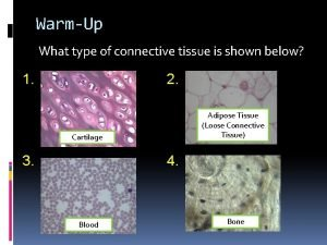 WarmUp What type of connective tissue is shown