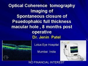 Optical Coherence tomography Imaging of Spontaneous closure of