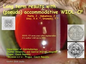 Long term results with pseudo accommodative WIOLCF Pasta