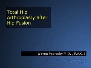 Total Hip Arthroplasty after Hip Fusion Wayne Paprosky