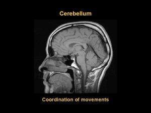 Cerebellum Coordination of movements Margo ant incisura cerebelli