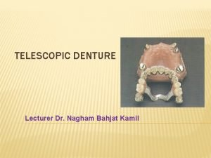 TELESCOPIC DENTURE Lecturer Dr Nagham Bahjat Kamil The