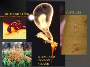 PUSTULES BITE AND STING AND POISON GLAND Where