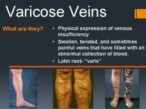 Varicose Veins What are they Physical expression of