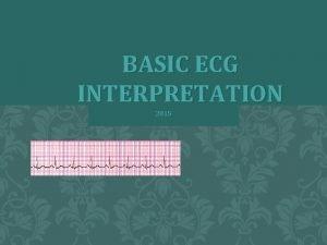 BASIC ECG INTERPRETATION 2015 OBJECTIVES review the ECG