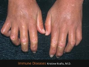 Immune Diseases Kristine Krafts M D Immune Diseases