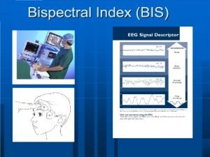 Bispectral Index BIS Monitors Bispectral Index BIS Pratik