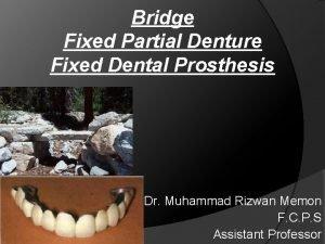 Bridge Fixed Partial Denture Fixed Dental Prosthesis Dr