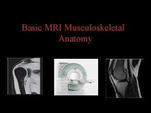 Basic MRI Musculoskeletal Anatomy Musculoskeletal MRI Indications Sport
