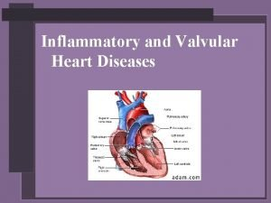 Inflammatory and Valvular Heart Diseases Rheumatic Fever and