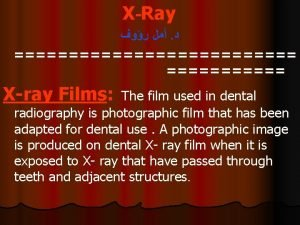 XRay Xray Films The film used in dental