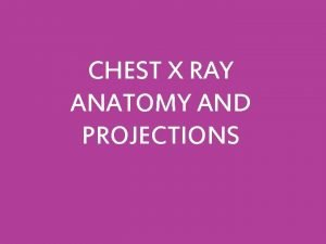 CHEST X RAY ANATOMY AND PROJECTIONS EVALUATING CHEST