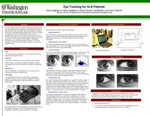 Eye Tracking for ALS Patients Sana Naghipour Saba