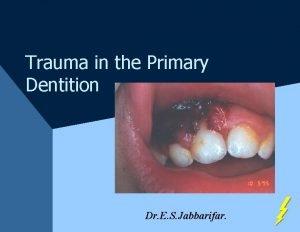 Trauma in the Primary Dentition Dr E S