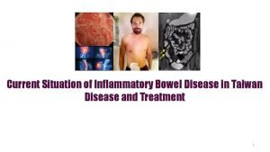 Current Situation of Inflammatory Bowel Disease in Taiwan