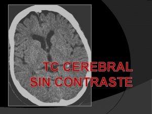TC CEREBRAL SIN CONTRASTE SOSPECHA ACV AGUDO TC