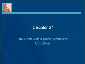 Chapter 24 The Child with a Musculoskeletal Condition