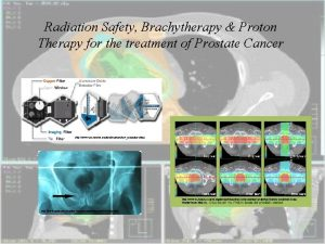 Radiation Safety Brachytherapy Proton Therapy for the treatment