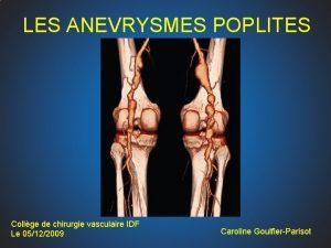 LES ANEVRYSMES POPLITES Collge de chirurgie vasculaire IDF