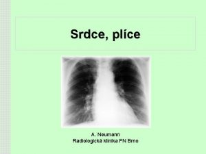 Srdce plce A Neumann Radiologick klinika FN Brno