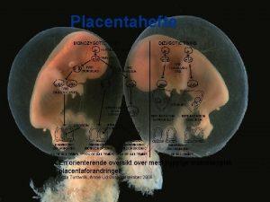 Placentahefte En orienterende oversikt over mest hyppige makroskopisk
