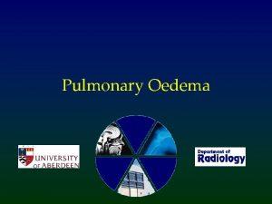 Pulmonary Oedema What is Pulmonary Oedema Abnormal accumulation