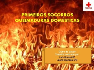 PRIMEIROS SOCORROS QUEIMADURAS DOMSTICAS Clube de Sade Trabalho