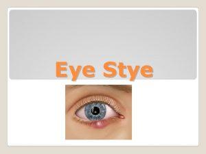 Eye Stye What is an Eye Stye Looks