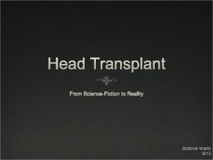 Head Transplant From ScienceFiction to Reality Bretzner Martin