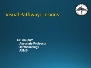 Visual Pathway Lesions VISUAL PATHWAY ANATOMY COMPONENTS OF