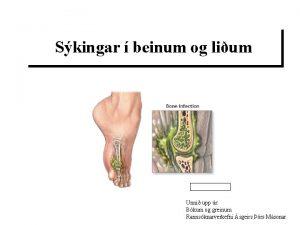 Skingar beinum og lium Unni upp r Bkum