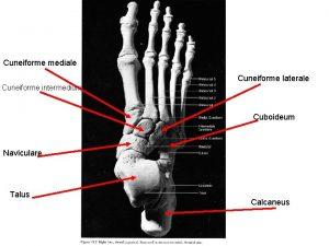 Cuneiforme mediale Cuneiforme laterale Cuneiforme intermedium Cuboideum Naviculare