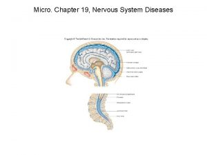 Micro Chapter 19 Nervous System Diseases Micro Chapter