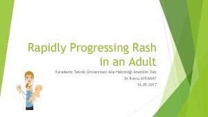 Rapidly Progressing Rash in an Adult Karadeniz Teknik