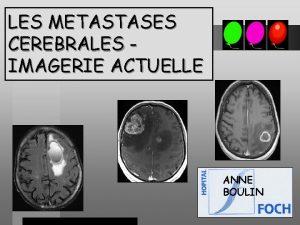 LES METASTASES CEREBRALES IMAGERIE ACTUELLE ANNE BOULIN EPIDEMIOLOGIE