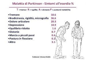 Malattia di Parkinson Sintomi allesordio T tremor R