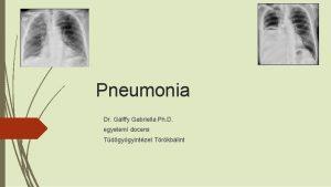 Pneumonia Dr Glffy Gabriella Ph D egyetemi docens