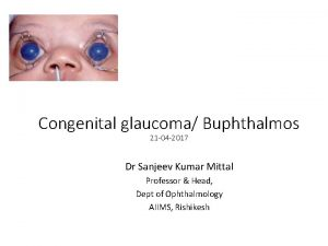 Congenital glaucoma Buphthalmos 21 04 2017 Dr Sanjeev
