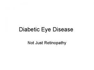 Diabetic Eye Disease Not Just Retinopathy Eye Anatomy
