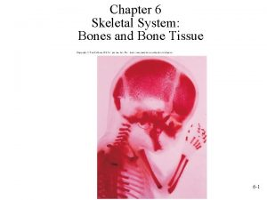 Chapter 6 Skeletal System Bones and Bone Tissue