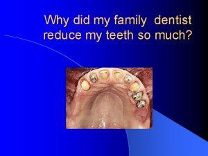 Why did my family dentist reduce my teeth