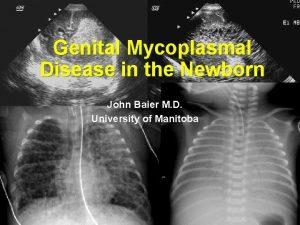 Genital Mycoplasmal Disease in the Newborn John Baier