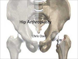Hip Arthroplasty Chris Oser Presentation Why hip replacement