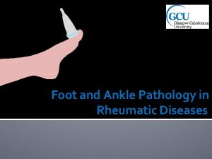 Foot and Ankle Pathology in Rheumatic Diseases Ankle