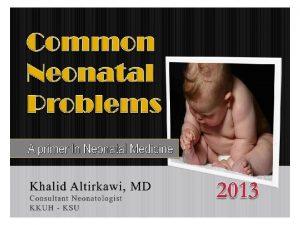 NB CGA is gestational age age in weeks