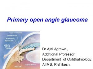 Primary open angle glaucoma Dr Ajai Agrawal Additional
