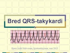 Bred QRStakykardi Bjrn Arild Halvorsen hjerteseksjonen mai 2013
