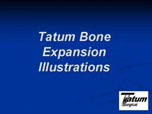 Tatum Bone Expansion Illustrations Indication for Bone Expansion