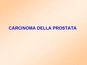 CARCINOMA DELLA PROSTATA PROSTATE CANCER Prostate Anatomy Prostate